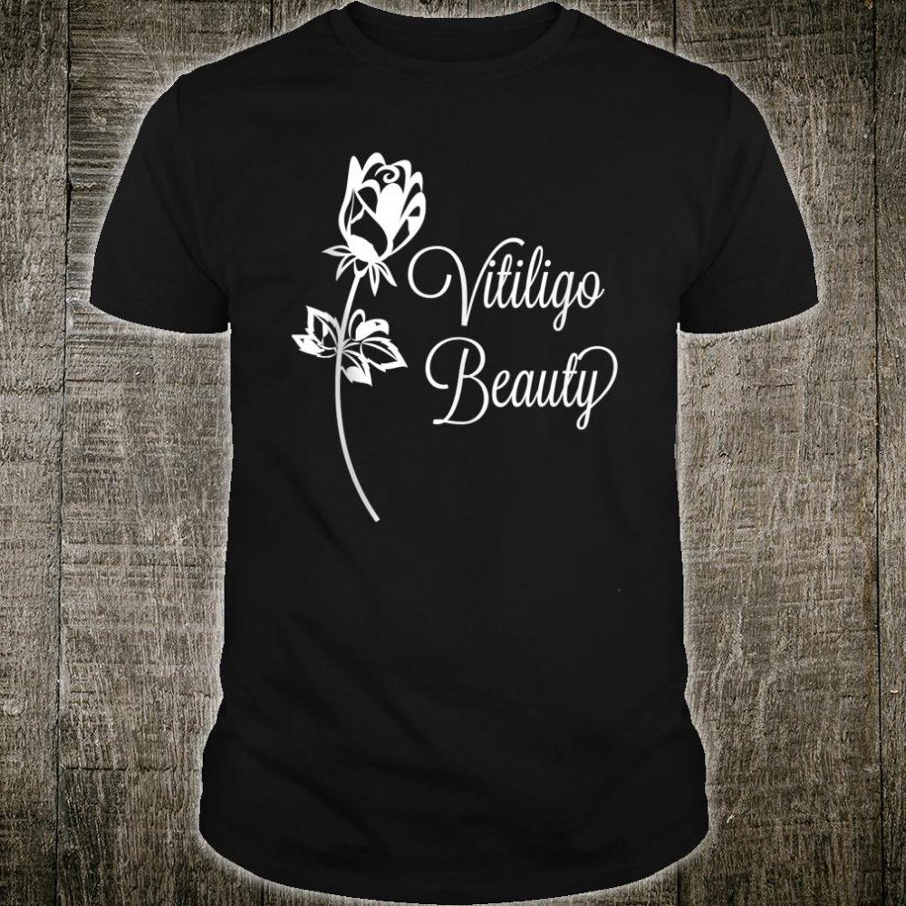 Beautiful Vitiligo Shirt